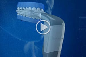 AcceleDent video Marda Loop Braces Calgary AB