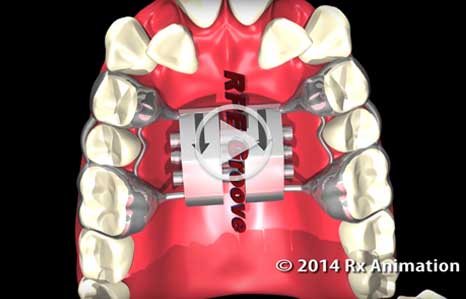 Arch Expander video Marda Loop Braces Calgary AB